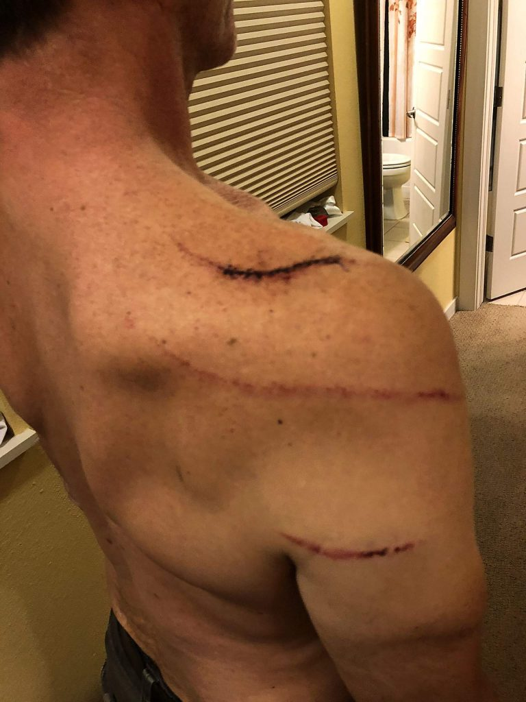 Dave Chernosky's back also received lacerations from the bear July 10.