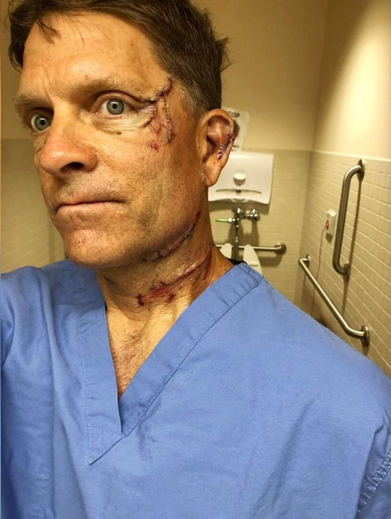 Dave Chernosky, who turned 55 on Sunday, came 2 millimeters away from losing his eye during a bear attack the morning of July 10.